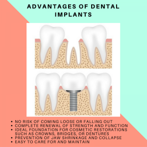 Five Benefits Offered by Dental Implants
