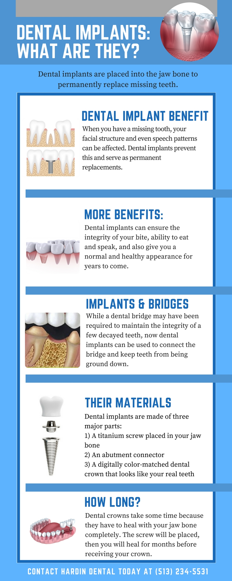 Dental Implant InfoGraphic