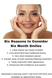 6 Reasons to Use Six Month Smiles