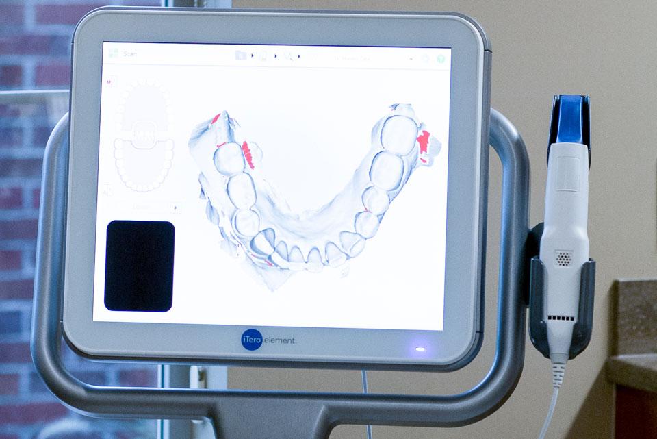 iTero Scanner Cincinnati, Ohio | 3D Digital Dental Impressions