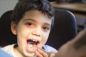 Choosing a Family Dentist