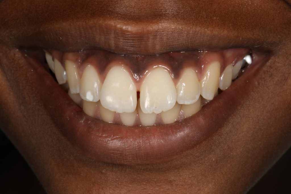 Bonded Tooth - Chipped Tooth Correction in Cincinnati